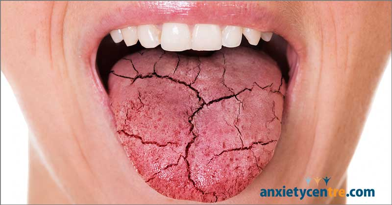 dry mouth xeorstomia and anxiety