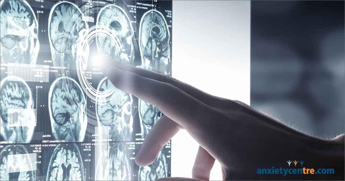 Smartphone Addiction Causes Imbalance In Brain